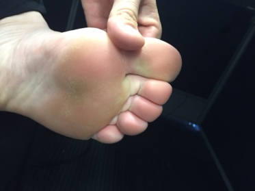"foot soles not happy with being 'frozen!"""